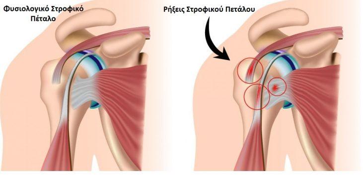 Πόνος στον ώμο.Ρήξη στροφικού περικαλύμματος ώμου – στροφικού πετάλου ώμου (Rotator Cuff Tears)