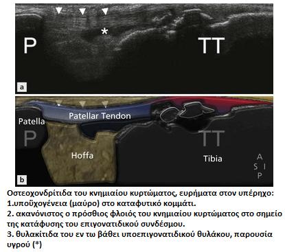 αποφυσίτιδα κνημιαίου κυρτώματος
